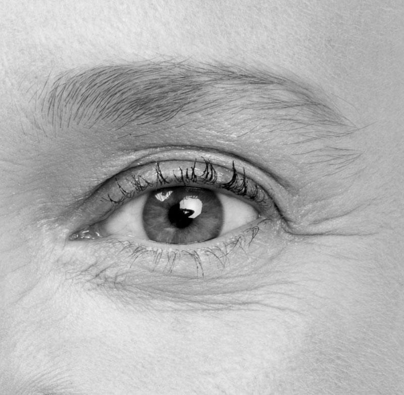 les rides ridules - les yeux